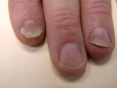 Treating Inverse Psoriasis in Skin Folds and Groin - WebMD